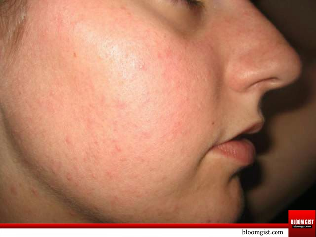 How to reduce redness of spots